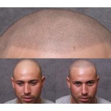 Saç Simülasyon Eğitimi
